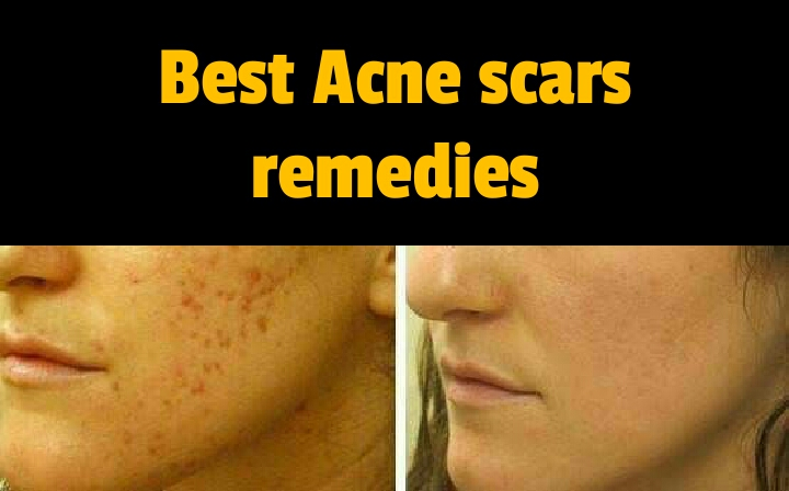 acne scars remedies